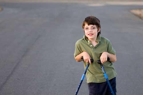 Serebral Palsi (SP) Nedir? Tedavisi Nasıldır?